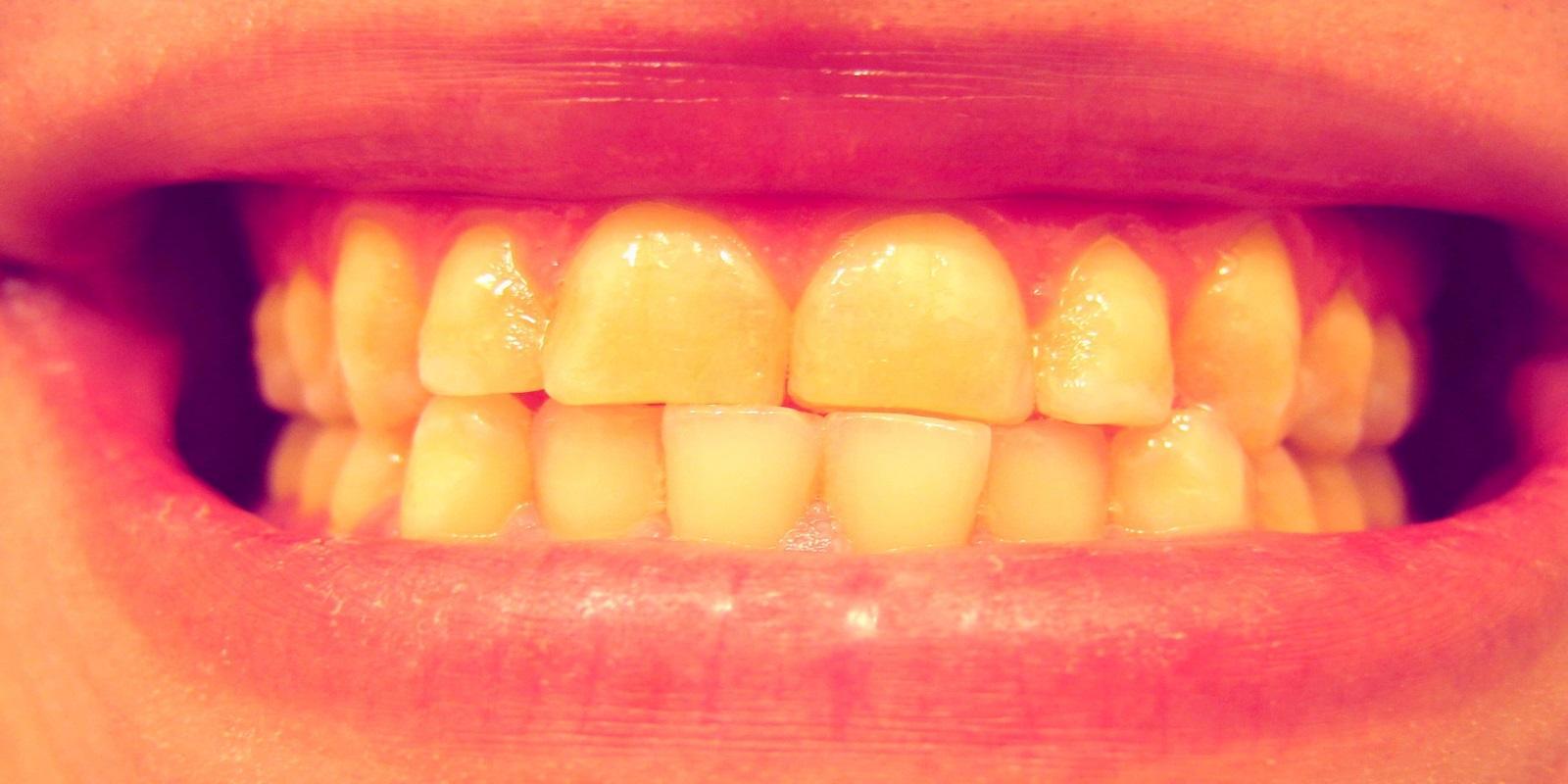 Bruxismo. Ranger de dentes e a Acupuntura